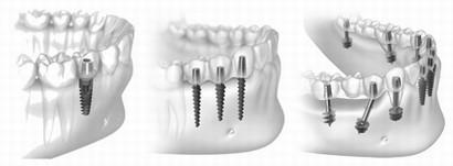 Имплантация зубов в Крыму недорого, цены, гарантия